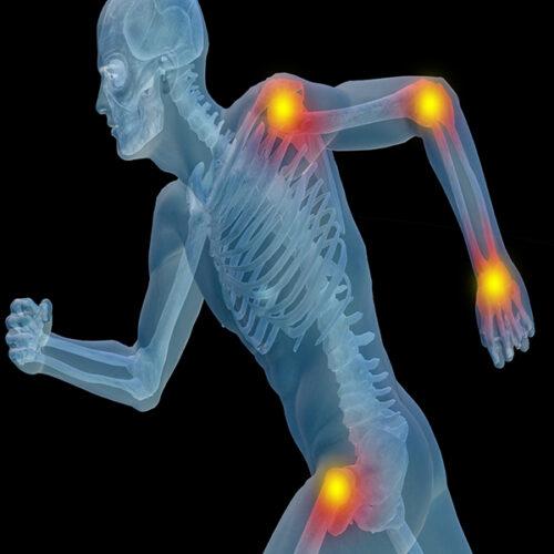 Huile Essentielle contre les douleurs rhumatismales